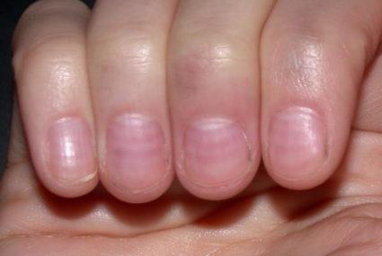 Уход за ногтевыми пластинками важен для отсутствия проблем в дальнейшем