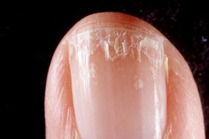 Химические соединения крайне негативно сказываются на состоянии роговых покровов