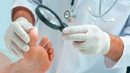 Установить точную разновидность поможет лабораторная диагностика