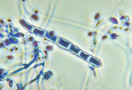 Точную разновидность инфекционного недуга установит доктор