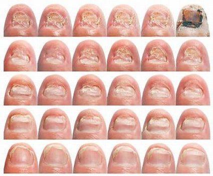 Лекарство от грибка стопы и ногтей отзывы