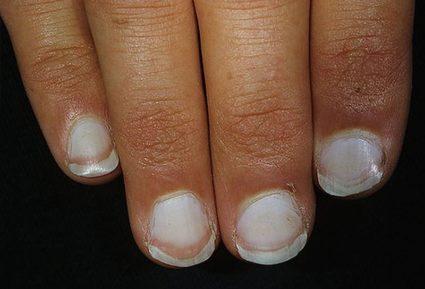 Почему побелели ногти